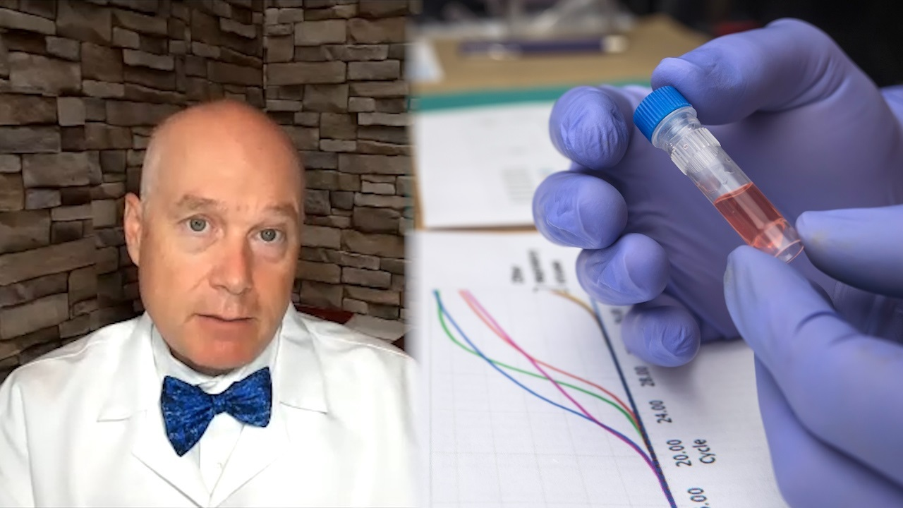 Columbia doctor worried over 'silent spreaders' losing their antibody 'shield' in as little as two months