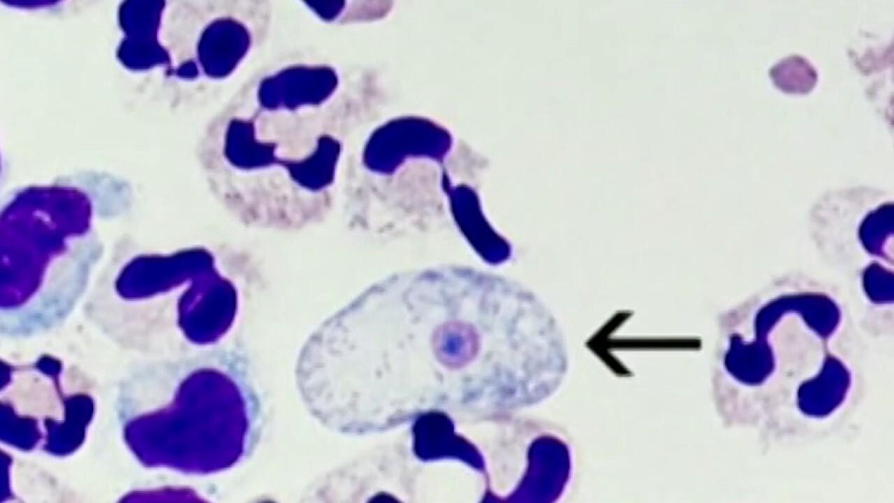 Brain-eating amoeba case reported in Florida