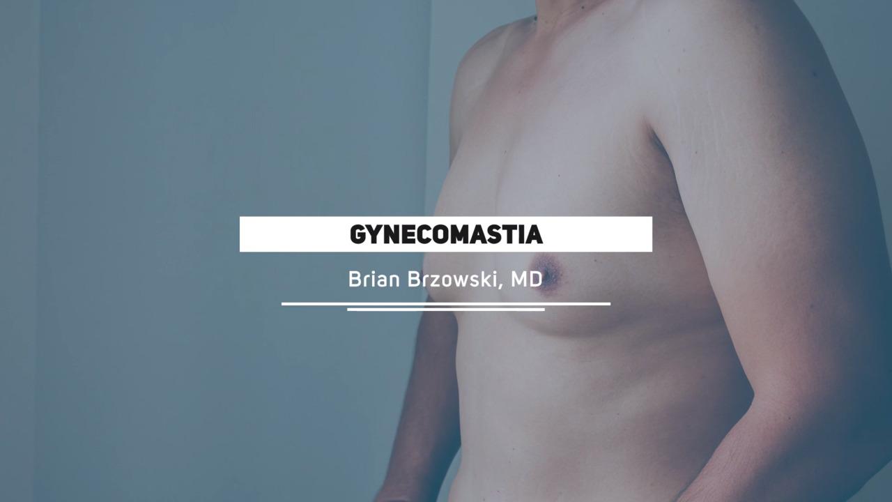 Gynecomastia Utah