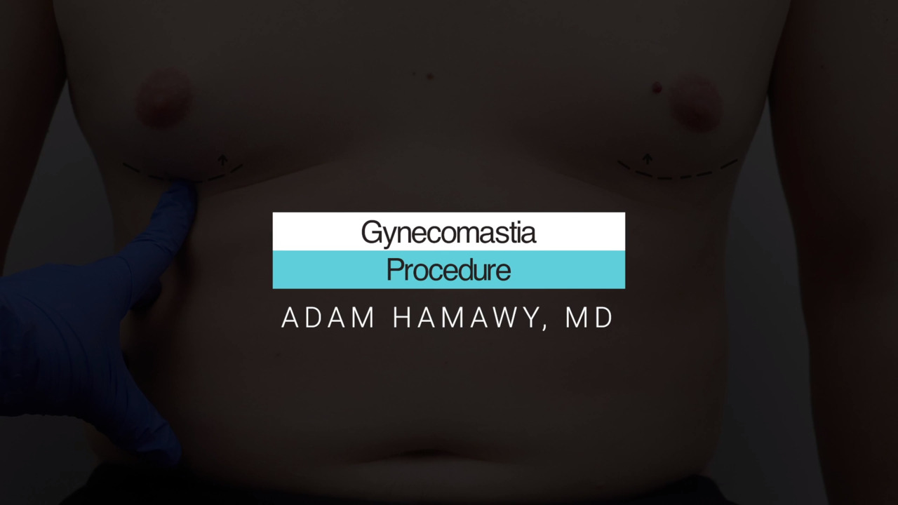How to Treat Gynecomastia, or Man Boobs
